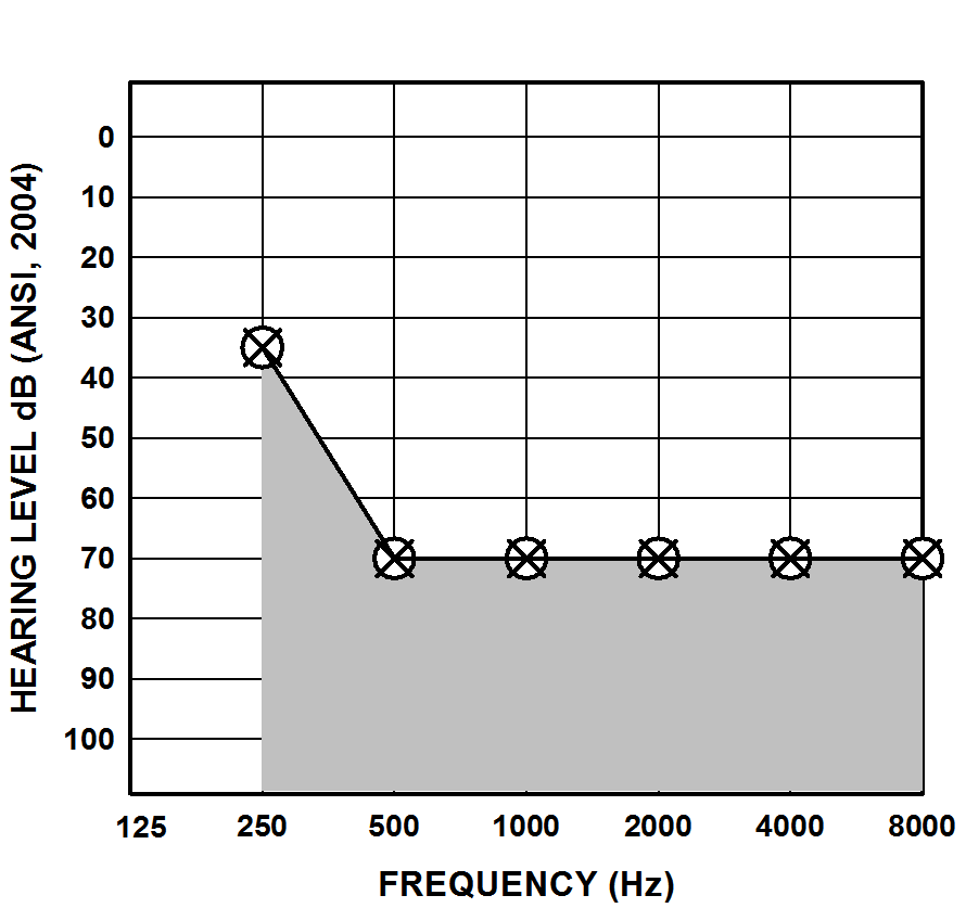 Typical Audiogram